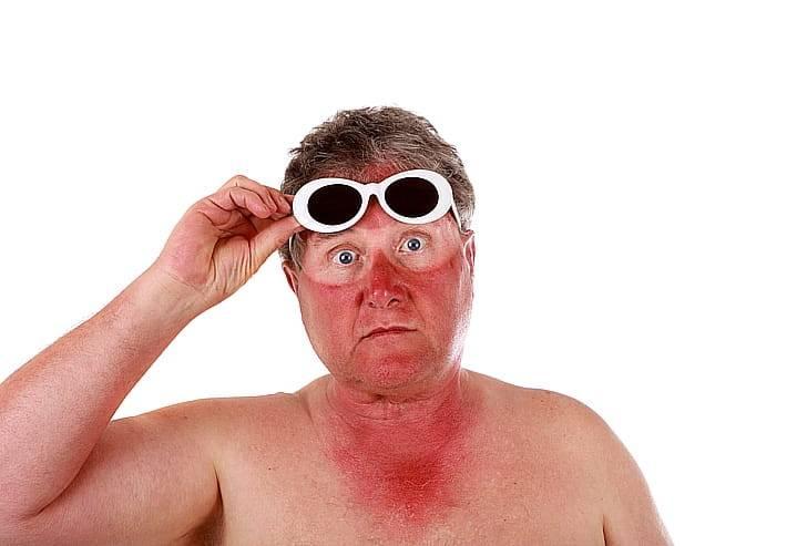 Солнечный ожог: 18 народных средств и рецепты применения