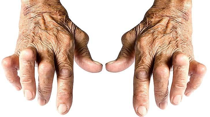 Ревматоидный артрит: симптомы и диагностика, 5 методов лечения